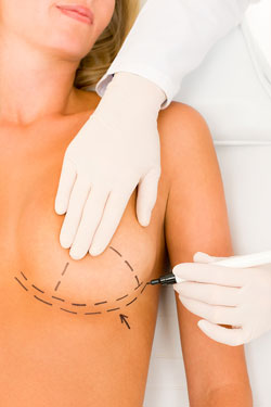 Breast Augmentation Naperville, Oak Brook, Elmhurst IL