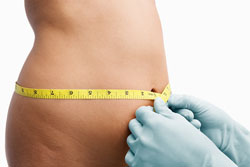 Liposuction Oak Brook IL
